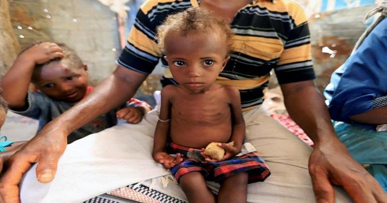 سعودی عرب کی جانب سے ممنوعہ ہتھیاروں کا استعمال، یمنی بچے بیماریوں میں مبتلا